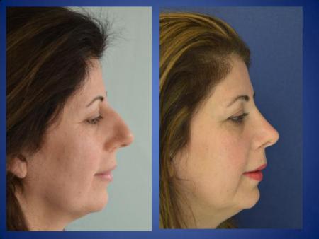 Фото до и после ринопластики в клинике Istanbul Aesthetic (Турция)