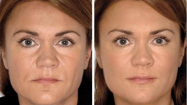 Face rejuvenation result after the procedure at Lemanic