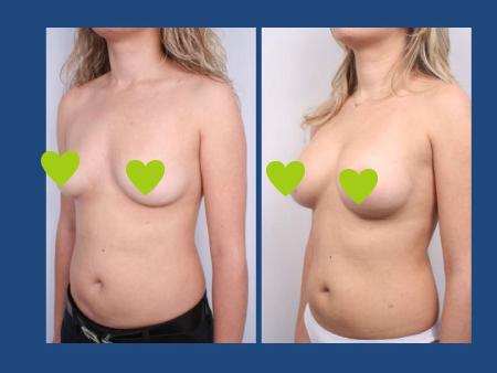 Фото до и после увеличения бюста в клинике клинике Стамбул Аэстетик (İstanbul Aesthetic) в Стамбуле, Турция