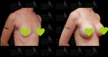 Фото до и после маммопластики в Эстетик Интернешнл