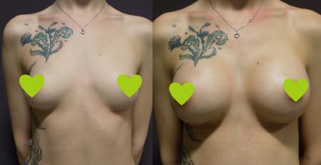 Фото до и после маммопластики в Форме