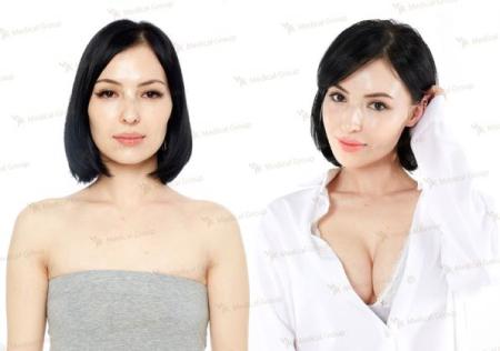 Фото до и после увеличения груди в JK