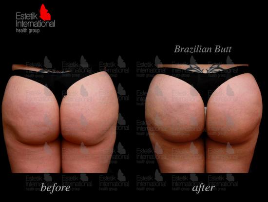 Brazilian butt lift in Turkey