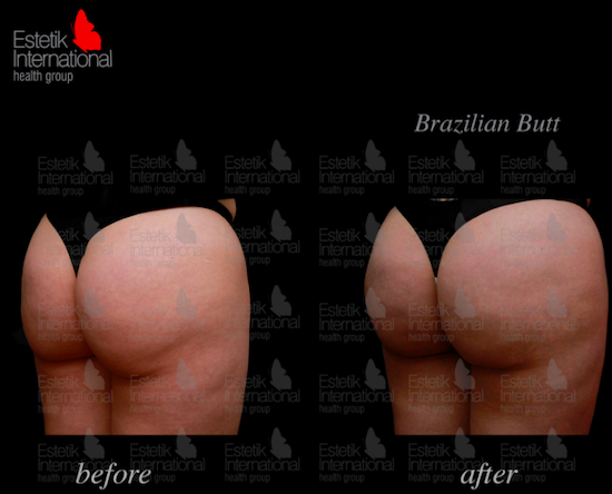 Before and after photos of Brazilian butt in Turkey