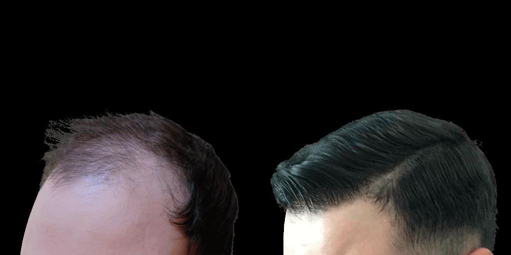 Пересадка волос до и после в клинике Сан-Медикал