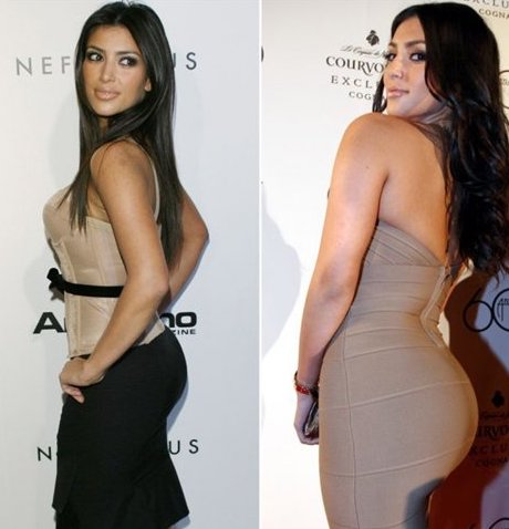 Kim Kardashian: before and after