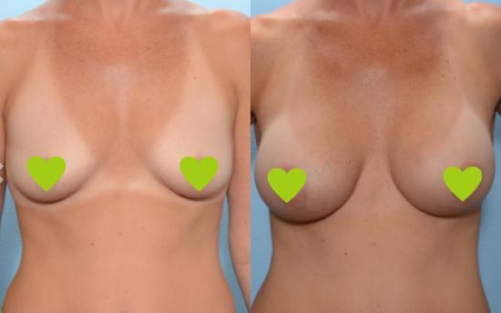 Фото груди до и после установки силиконовых грудных имплантов Mentor
