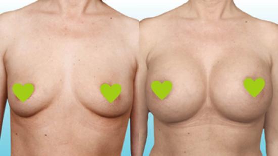 Фото груди до и после установки круглых имплантов Natrelle