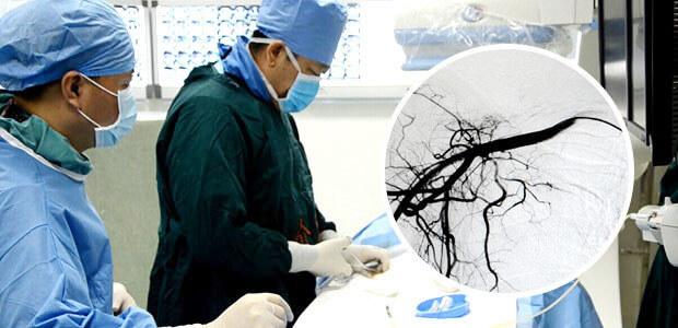 Chemoembolization in Modern Cancer Hospital
