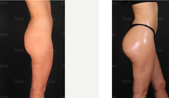 Before and after Brazilian butt lift at Estetik International