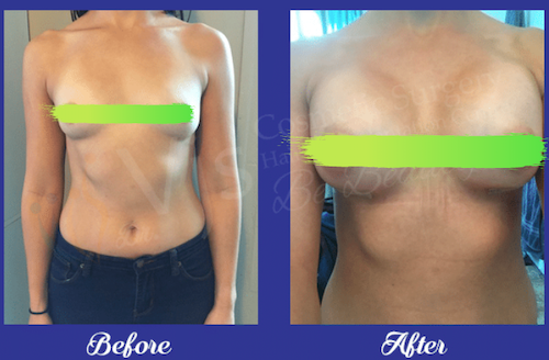 Before and after breast augmentation in VJs Plastic Surgery Clinic