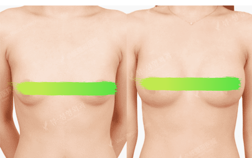 Before and after photos of breast implant surgery View