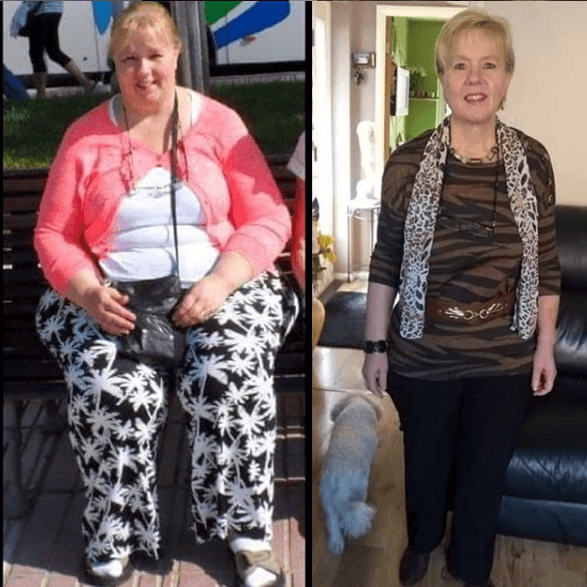 Before and after weight loss surgery at KCM, Poland