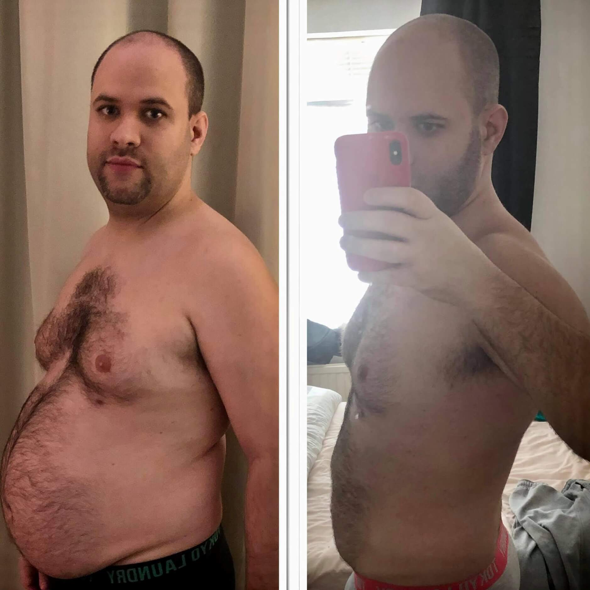 A man after bariatric surgery at KCM: before-after