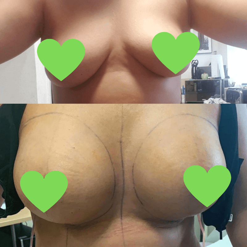 Before-after breast enhancement at KCM in Poland