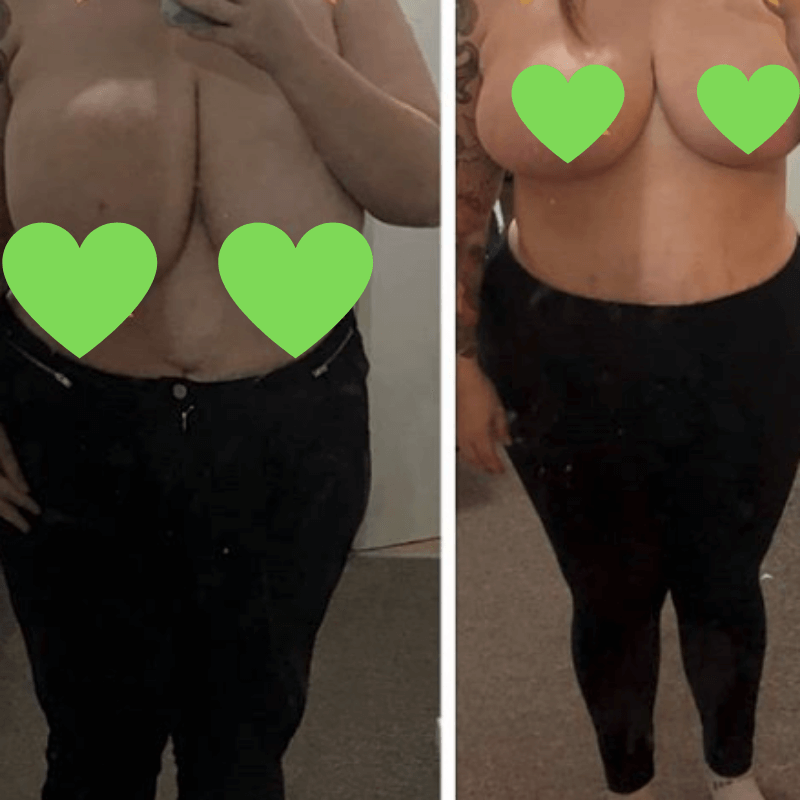 Before-after breast reduction in Polish KCM CLinic