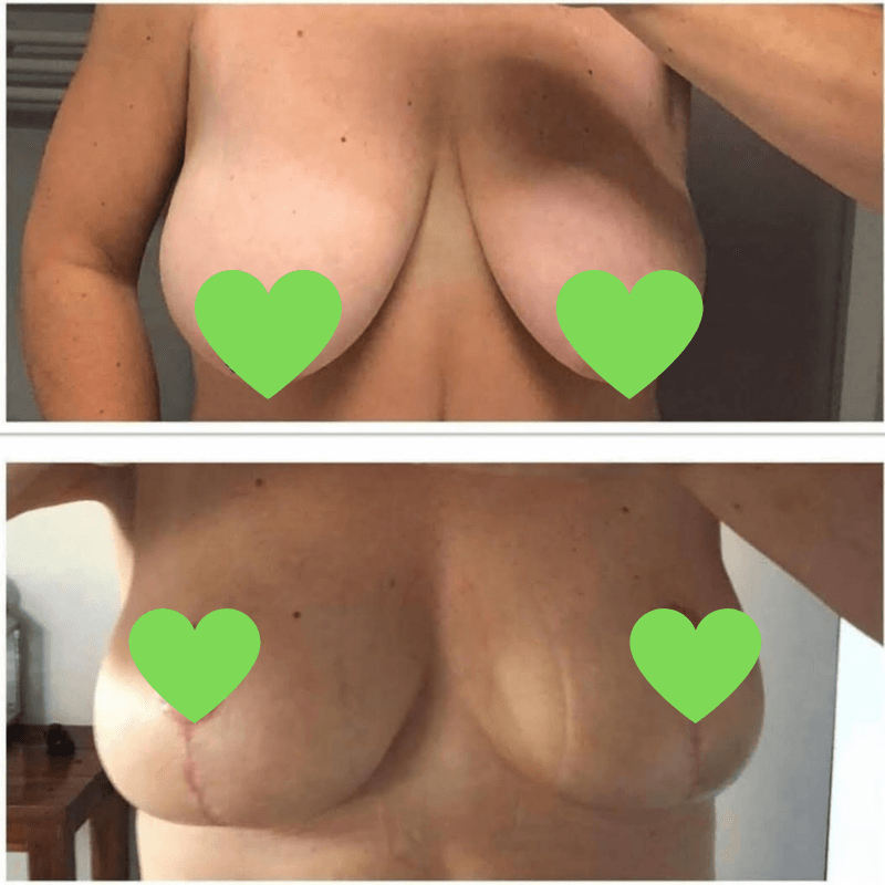 Before-after breast correction in Polish KCM CLinic