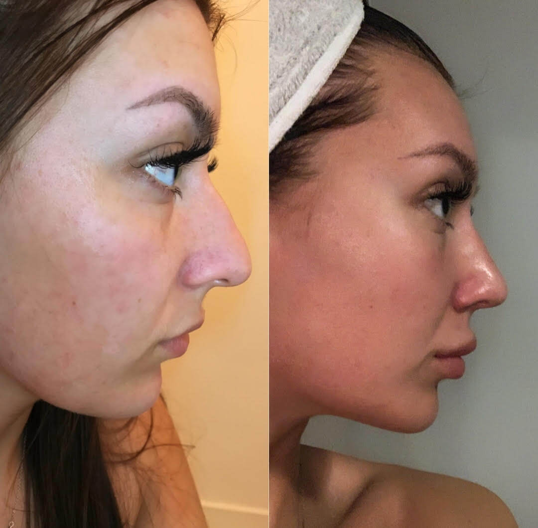 Before-after nose job at KCM