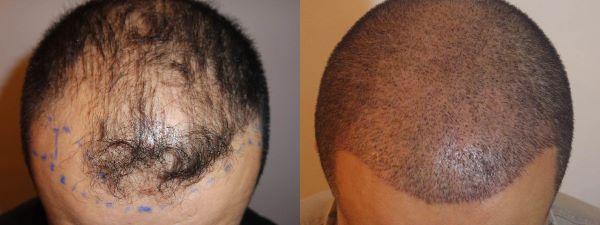 До и после пересадки волос в Клиниста