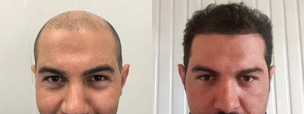 До и после трансплантации волос