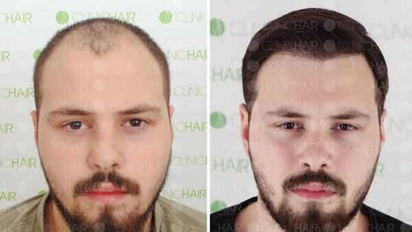До и после пересадки волос методом FUE
