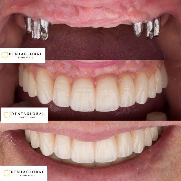 Cheap dental implant in Turkey