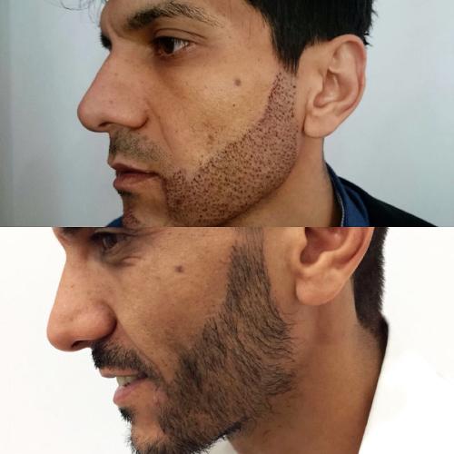 Фото бороды после пересадки