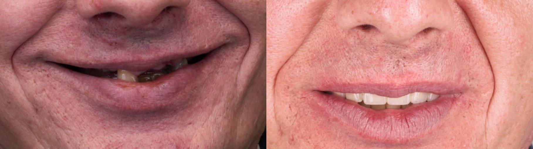 До и после стоматологического лечения