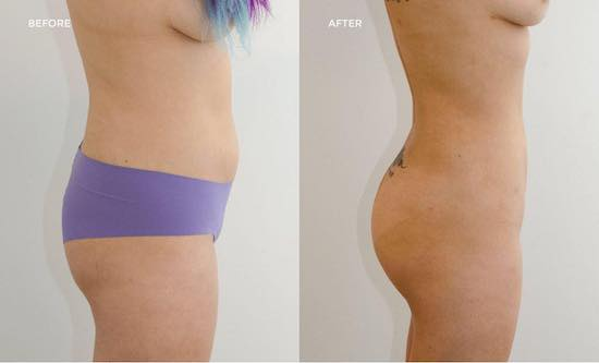 Brazilian butt lift in Turkey, Instanbul Aesthetics Plastic Surgery