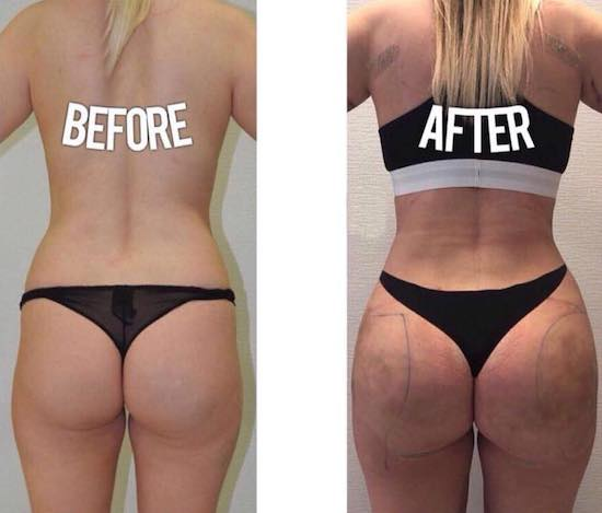 Brazilian butt lift at Istanbul Aethetics Plastic Surgery Center