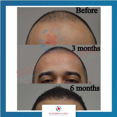 До и после пересадки волос в клинике Suzermed