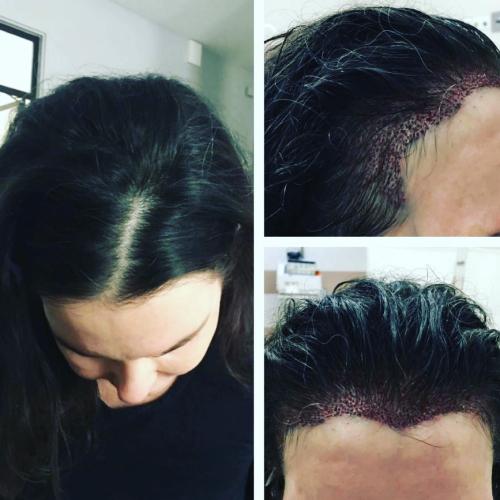 До и после трансплантации волос у женщины в клинике САЛУСС