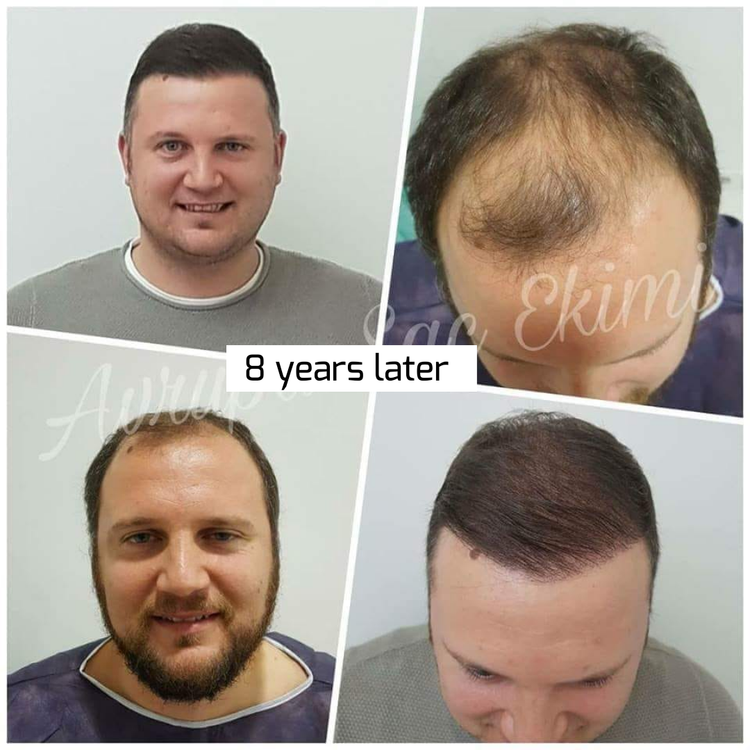 Before-after hair plantation in Turkish clinic