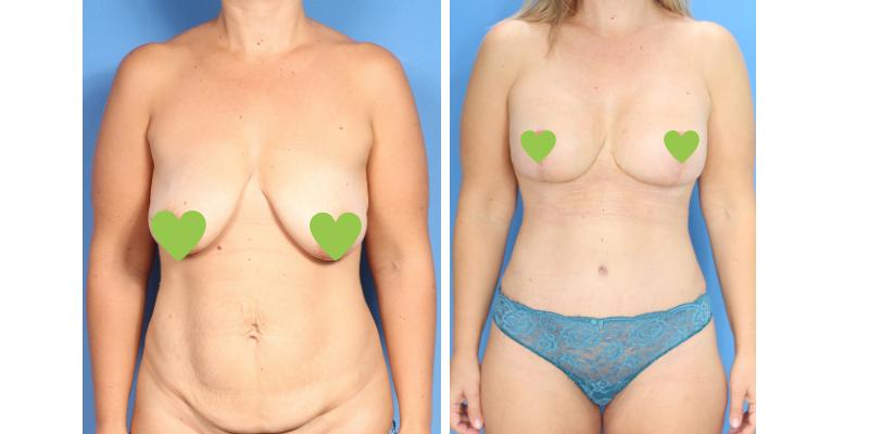 Уменьшение и подтяжка груди до и после