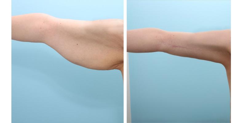 Коррекция рук до и после