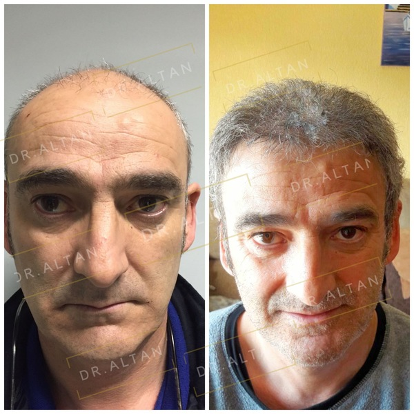 Result of hair transplant in Aestepool Clinic