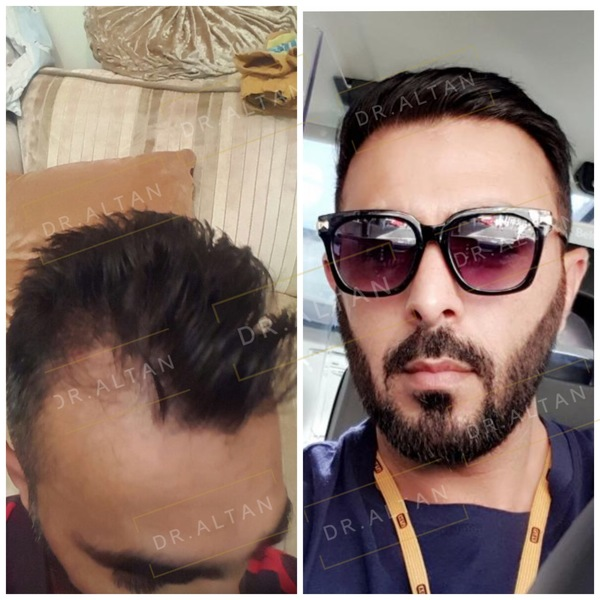 Result of FUE hair plantation at Aestepool