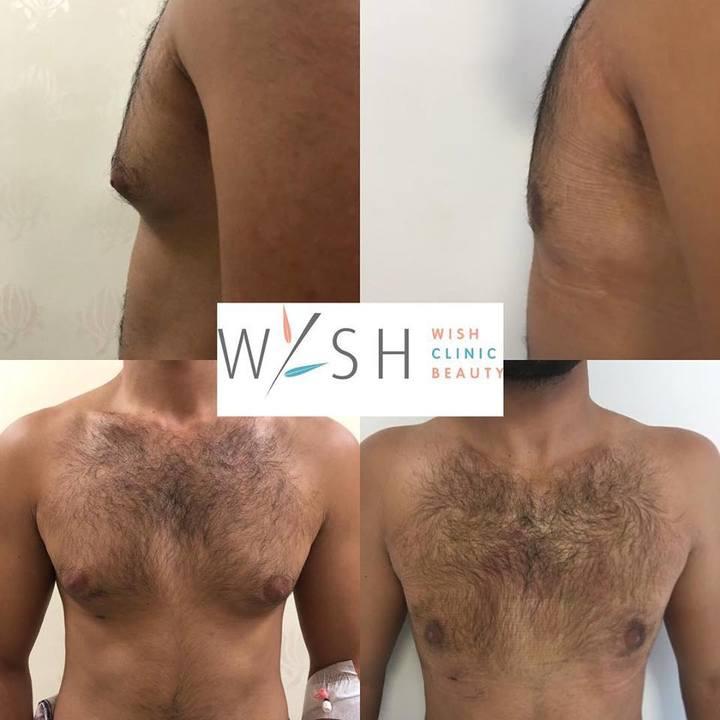 коррекция груди у мужчины