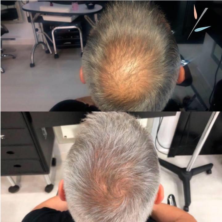 фото волос после пересадки