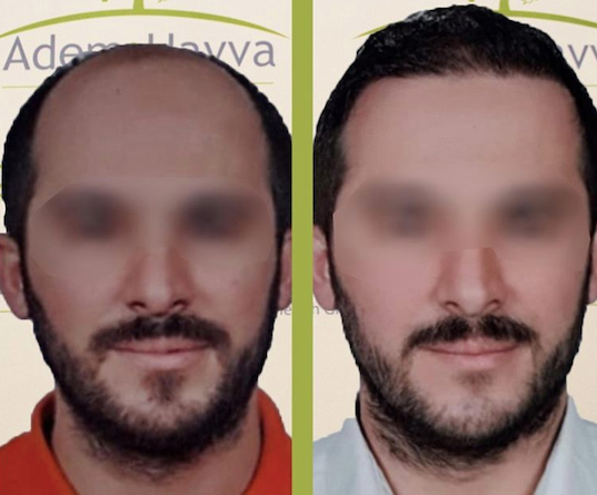 Before and after hair transplant at Adem & Havva Medical Center