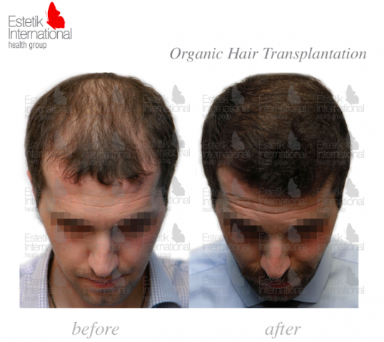 Before and after hair transplant at Estetik International