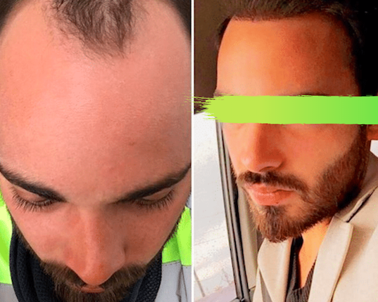 Before and after hair transplant in SALUSS Clinic