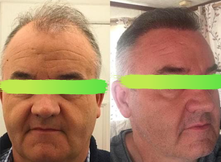 Before and after hair transplant in Smile Hair Clinic