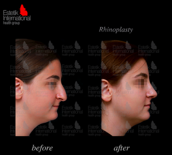 Before and after photos of a nose job at Estetik International
