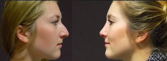 Before and after photos of a nose job at FORME