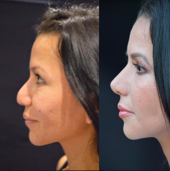 Before & after photos at Dr. Munoz Meza Plastic Surgery Center