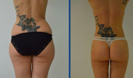 Before and after photos of liposuction at Istanbul Aesthetics Plastic Surgery Center