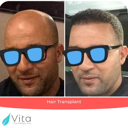 Hair transplant result outcome