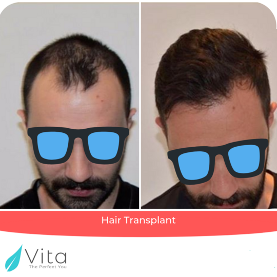 Before and after photos of hair transplant in Vita Estetic