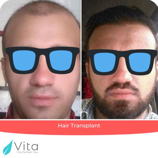 زراعة الشعر outcome at Vita Estetic